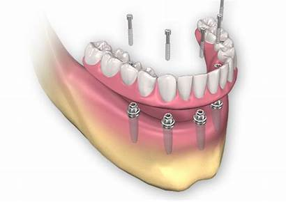 Dental Implants Arch Removable Mobile Implant Bone