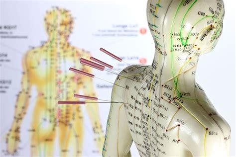acupuncture pour maigrir acupuncture pour maigrir r 233 efficacit 233 ou mensonge