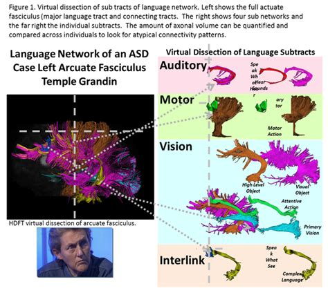Asperger's syndrome is a neurobiological, developmental disorder related to autism. What is the current view on Asperger's syndrome? What causes it? - Quora