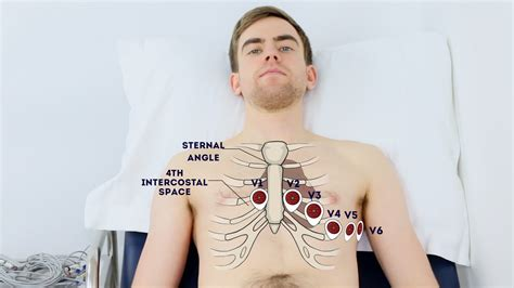 How To Record An Ecg Osce Guide Geeky Medics