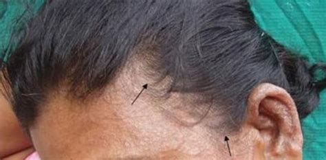 The Truth About Your Itchy Scalp And Hair Loss