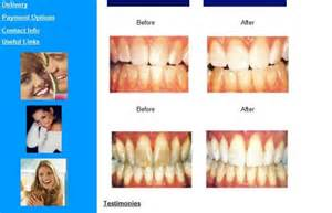 Teeth Whitening Gel Before and After