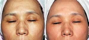 Солкосерил с димексидом от морщин фото до и после