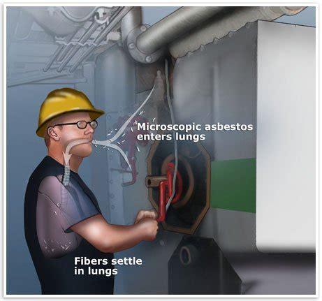 mesothelioma  asbestos exposure  mesothelioma