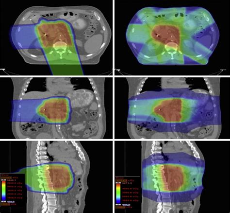 Proton Therapy Pancreatic Cancer by Proton Therapy Pancreatic Cancer Particle Therapy For
