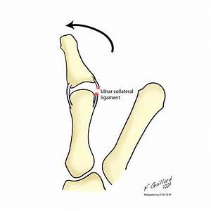 Gamekeeper U0026 39 S Thumb And Stener Lesion Diagrams