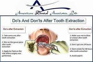Know About Don U0026 39 S And Dont U0026 39 S After Tooth Extraction     Atooth Com  Cicero