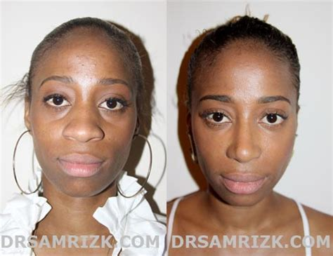 African American Rhinoplasty In Nj, Pa  African American. Pre Qualify For Va Loan College Of Micronesia. Digital Communications Degree. Computer Games At School Litespeed Web Server. Income Limits Roth Ira Mortgage Loan In India. How Is Your Credit Score Calculated. University Of Iowa Rotc Kundalini Yoga Ashram. Bail Bonds In Sacramento Ca Form Css Styles. Pharmacy Technician Certifications
