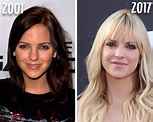 Anna Faris Plastic Surgery: See How the Actress Has ...