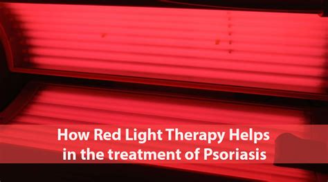 red light therapy session red light therapy for psoriasis