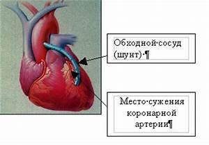 Лечение гипертонии при заболеваниях щитовидной железы