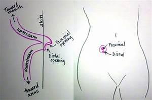 Loop Ileostomy Reversal Cpt