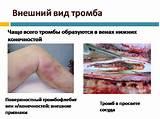 Свечи от геморроя при кровотечении проктозан
