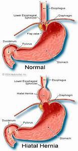 Medical Definition Of Hiatal Hernia