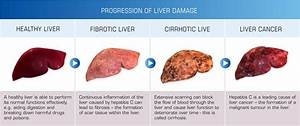 Liver cirrhosis... Hepatitis