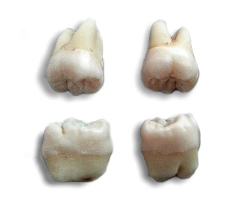 wisdom tooth wikipedia
