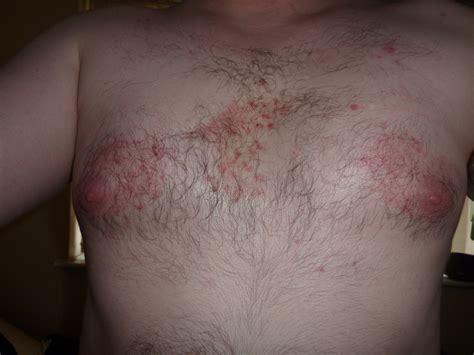 Rash On Nipples Hairy Woman Ass
