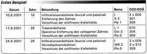 Goz Zahnarzt Abrechnung : abrechnung nach bema und goz operative eingriffe eine gegen berstellung teil 1 ~ Themetempest.com Abrechnung