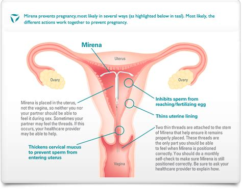 how do i get a long form birth certificate using a mirena for birth control