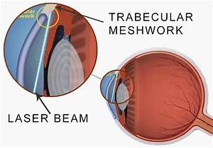 Introduction To Laser Trabeculoplasty (LT) | New-Glaucoma ...