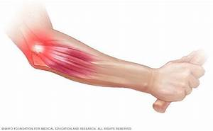 Tennis Elbow - Symptoms And Causes