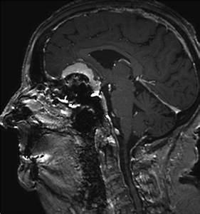 Planum sphenoidale meningioma with hyperostosis | Image ...