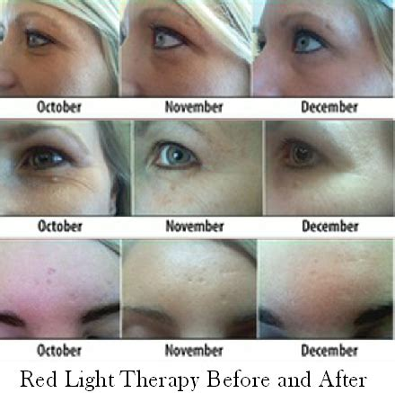 Red & Yellow Light Therapy Seriously Fights Aging