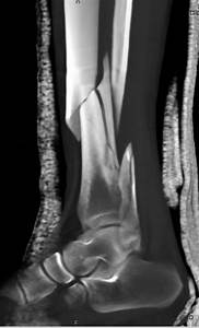 Spiral Fracture Of The Distal Tibia And Fibula