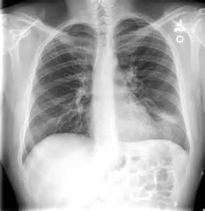 Left Lower Lung Pneumonia