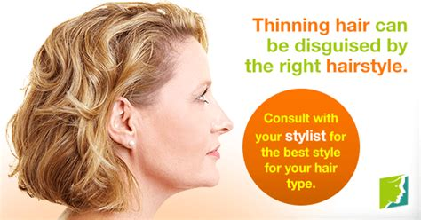 How Can I Disguise My Thinning Hair?   Menopause Now