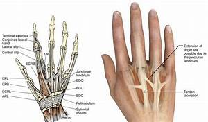 Extensor Tendon Injuries - Hand - Orthobullets