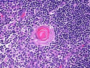 Thymus Hyperplasia