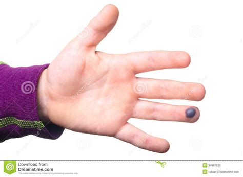 Blood Blister Stock Image Image 34687531