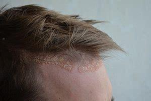 le  piu importanti patologie del cuoio capelluto