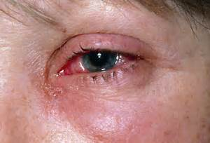 Medical Pictures Info – Conjunctivitis Conjunctivitis