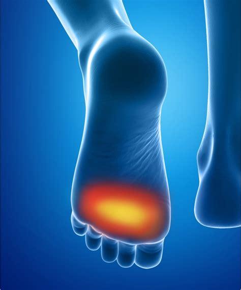 douleur al interieur du pied coussinets plantaires durillons soulage l avant pied epitact