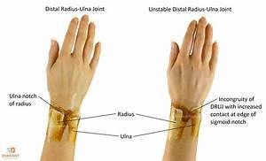 Photos: Ulna Bone Pain, - Anatomy Diagram Charts