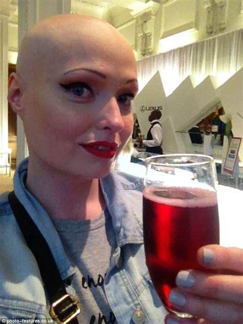 brenda finn left completely bald  alopecia  bully hell