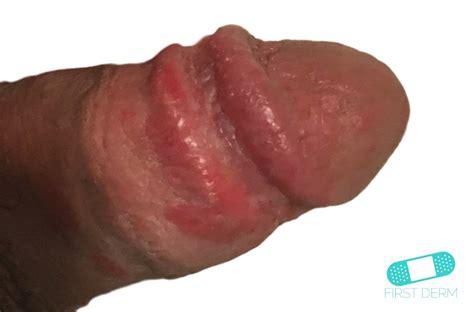 uncircumcised penis pain jpg 1024x675