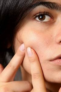 Acne Treatment  Cutting Out Vitamin B12 Supplements Can