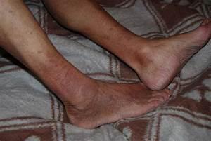 Лак против грибка ногтей на ногах цена