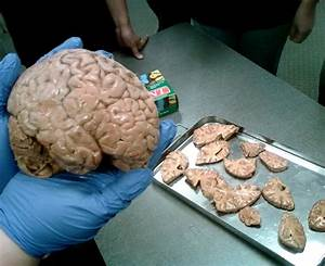 Real Human Brain Images | www.imgkid.com - The Image Kid ...