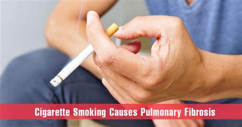 pulmonary fibrosis  symptoms diagnosis