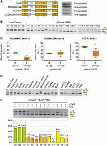 Ig20  Madd Exon 16 Alternative Splicing Is Altered In Gliomas   A