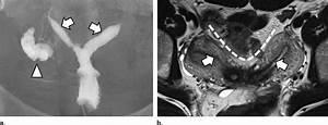 Bicornuate Uterus In A 38
