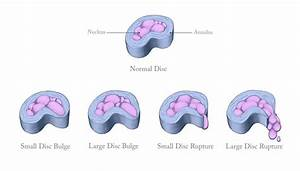 What Is A Herniated Disc