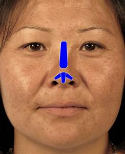 Asian Rhinoplasty Surgery