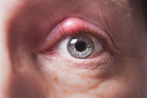 Styes How You Can Avoid Them And Best Treatment Tips