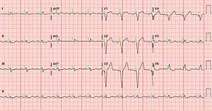 Dr  Smith U0026 39 S Ecg Blog  A Patient With A Ventricular Paced