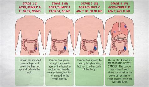 stage colon cancer symptom treatment  outlook  health advisor